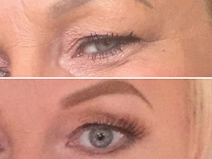 Touch Skin Before & After Eyes