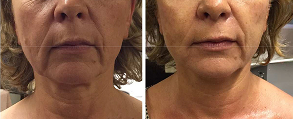Io S21 Before & After Jowls