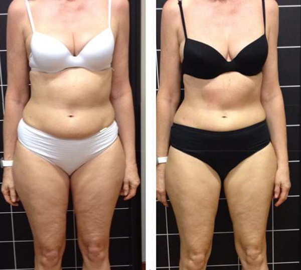 Io S21 Before & After Tummy