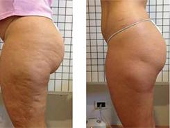 Arctik Cryo Result - Legs