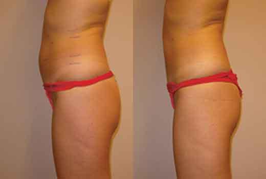 Cryo results on abdomen