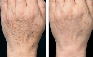 Hands - Rejuvenation Age Skin spots