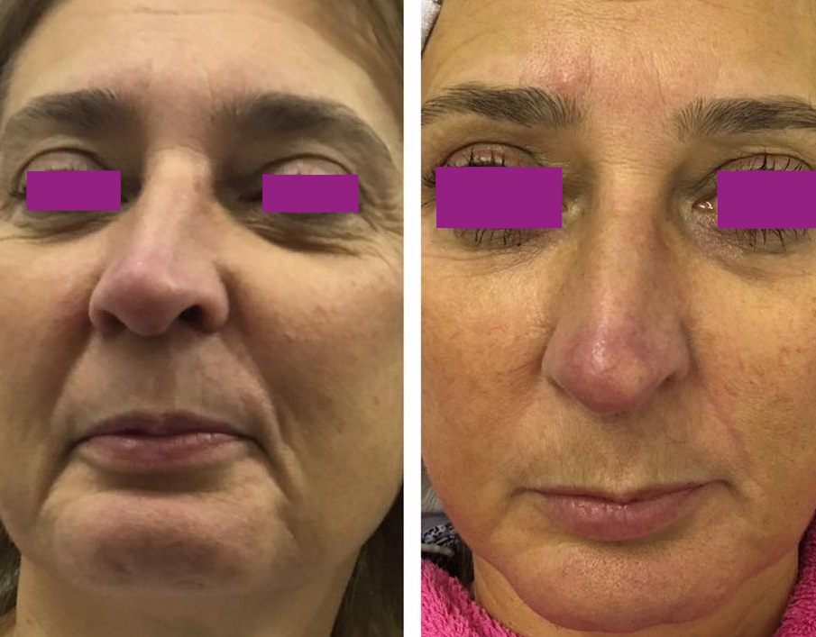 Upper Eye Lift-Jowls-Marionettes